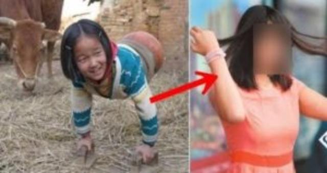 Gadis 17 Tahun Yang Lalu Tanpa Kaki..!! Kini Saat Dewasa Semua Orang Takjub..!! MELIHAT Perubahannya..!!