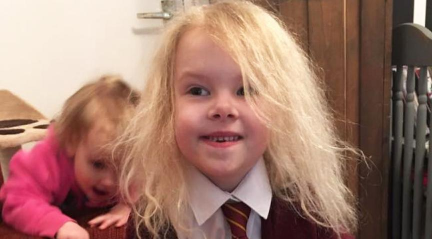 Uncombable Hair Syndrome Symptoms