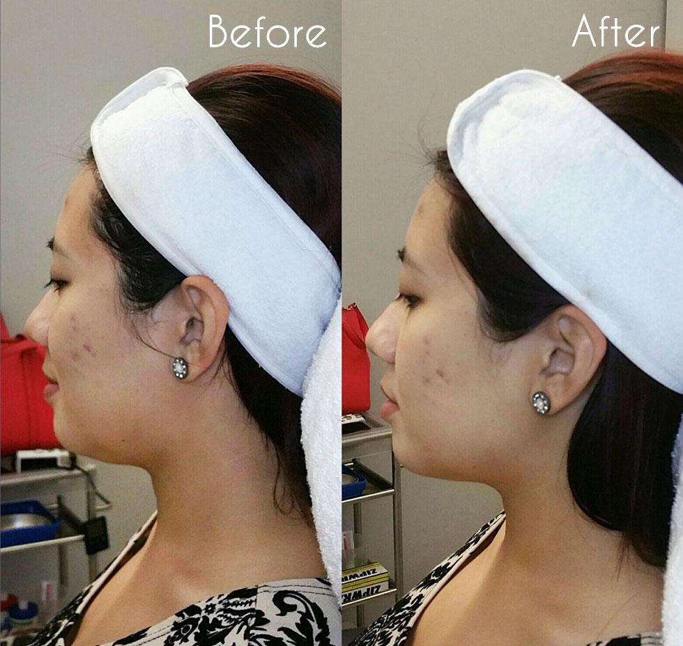 Light Years Ahead // Aesthea Medical Aesthetic Clinic - Beautybyrah