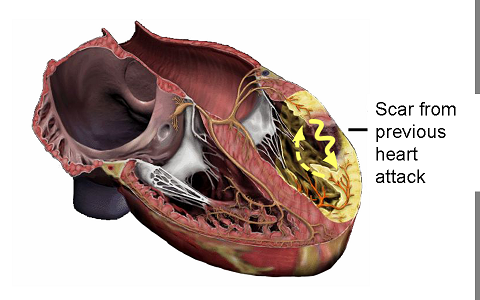 Immune Cells in Heart Help it Mend | National Institutes ... |Heart Scar Tissue