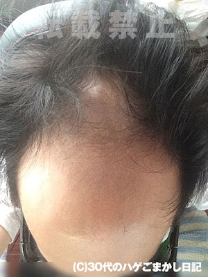 頭皮の写真