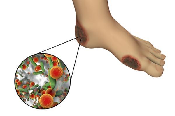 4 giải pháp giúp người tiểu đường phòng ngừa hoại tử bàn chân