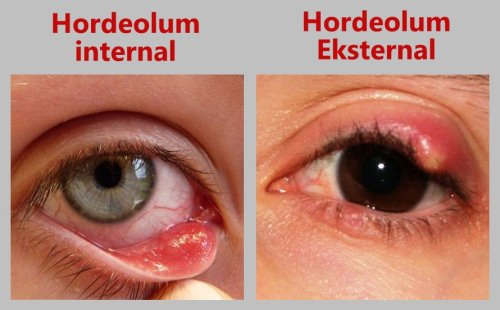 Hordeolum internal dan eksternal