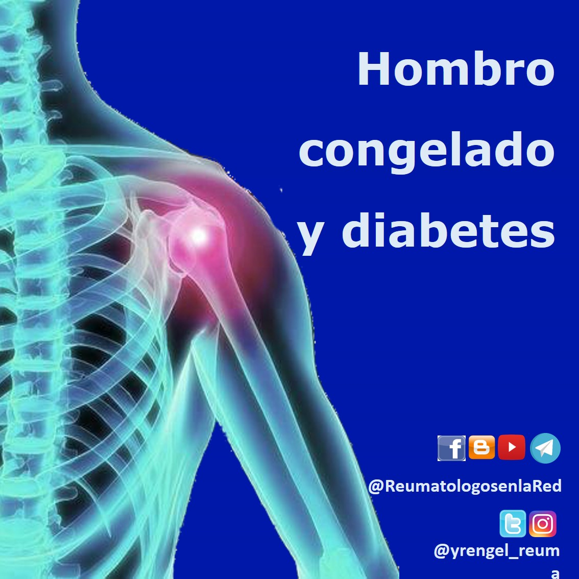manguito rotador sintomas de diabetes