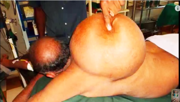 the world's biggest sebaceous cyst on neck **, Skeleton