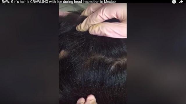 Niat Potong Rambut, Stylish Kaget Melihat Apa yang Ada Di kepala Gadis Ini