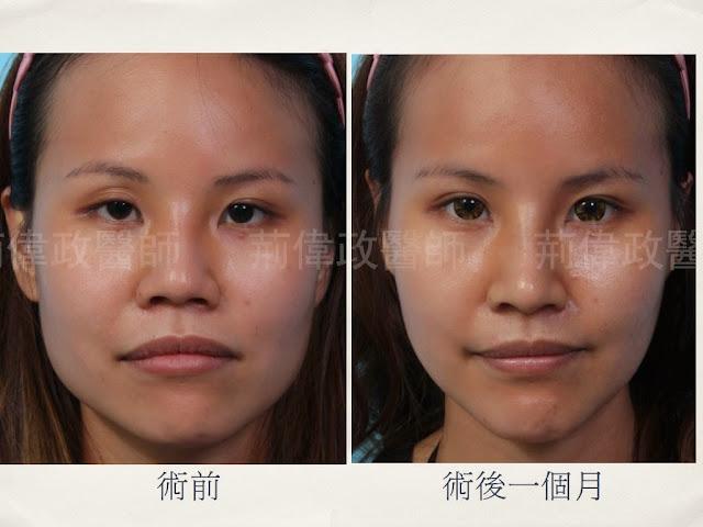 荊偉政整型外科醫師醫美部落格|Dr.Ching Aesthetic Plastic Surgery: 臉型與髮型--削骨手術