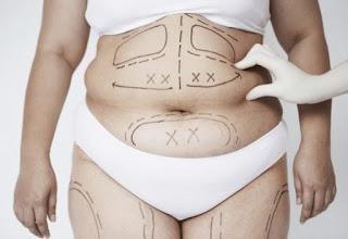 4 cách giảm cân không dùng thuốc tốt nhất bạn phải biết!