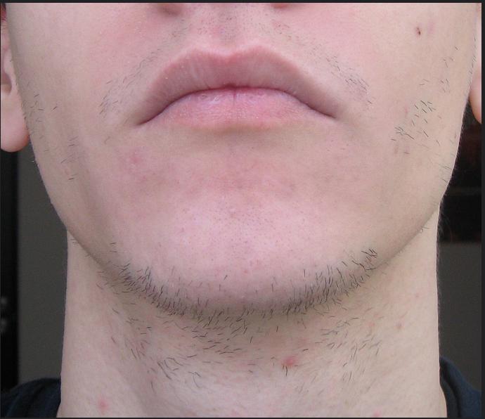 bien faire pousser sa barbe