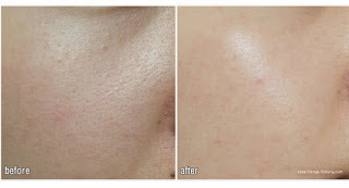 Skin79 Gold BB Pumping Cushion Before After
