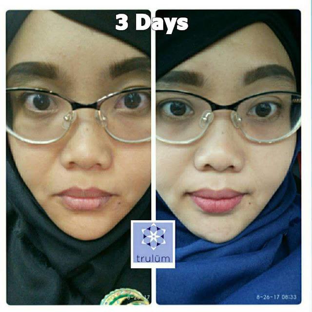 Jual Serum Penghilang Jerawat Trulum Skincare Morotai Selatan Pulau Morotai