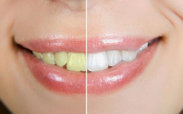 Cara Praktis Memutihkan Gigi Dengan Garam Dapur dan Jeruk Nipis