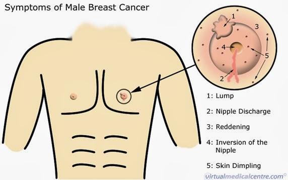 Breast caner in men