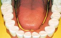 Remèdes dent infectée
