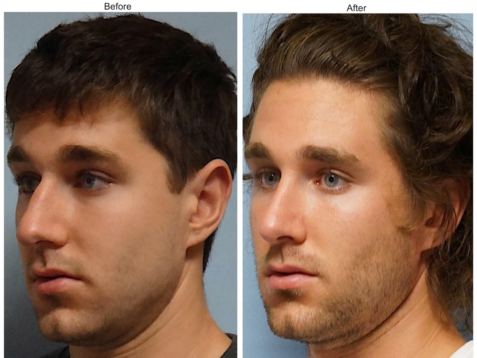 facial plastic surgery male rhinoplasty cosmetic