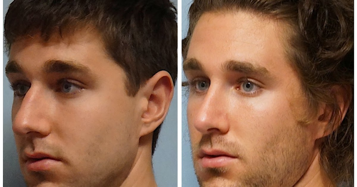 Facial Plastic Surgery: Male Rhinoplasty, Cosmetic