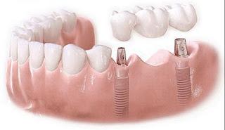 Chi phí cấy ghép implant bao nhiêu để có răng tự nhiên?