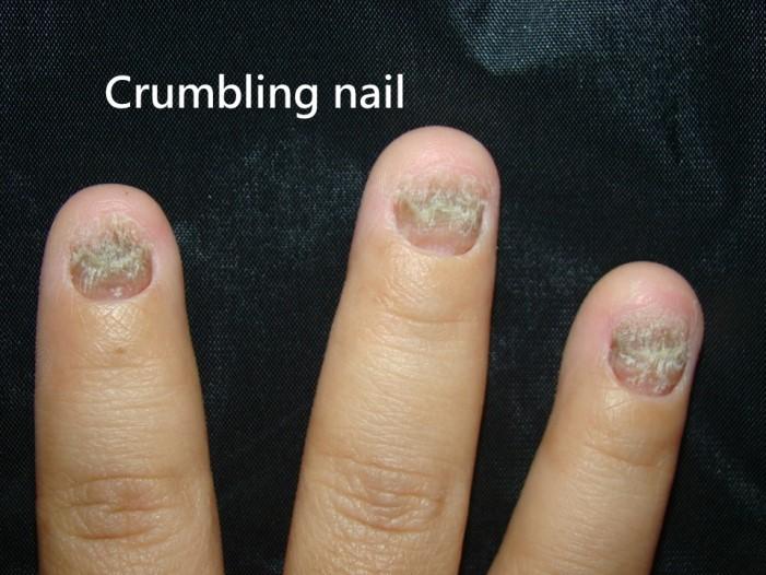 指甲乾癬-Crumbling nail