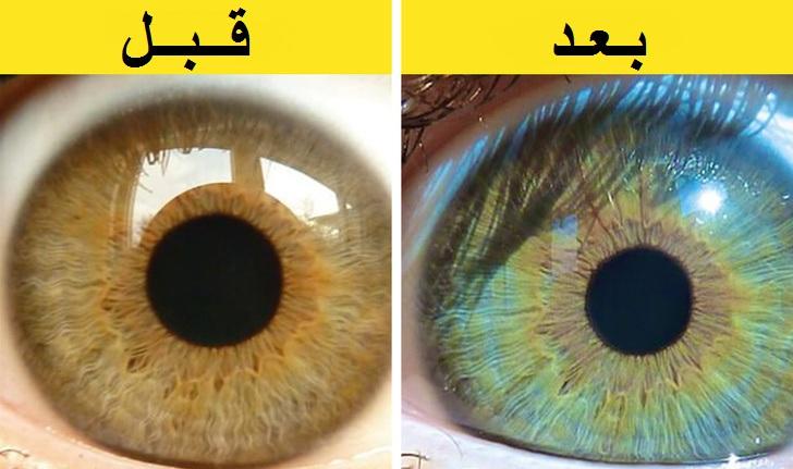 7 أشياء يمكن أن تغير لون عينيك