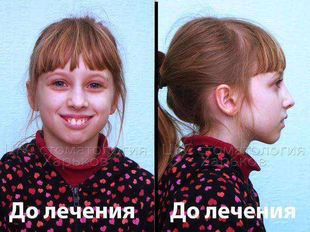 Фото лица в двух проекциях до начала лечения