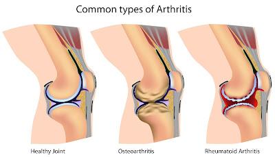 cara menyembuhkan arthritis