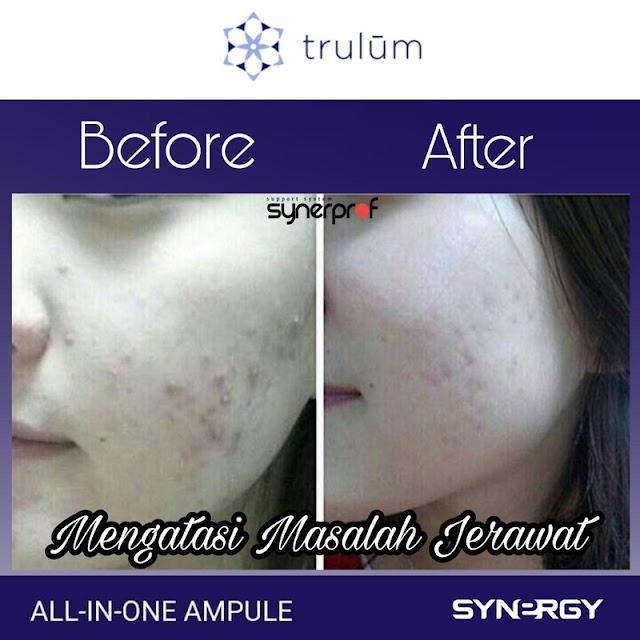 Jual Serum Penghilang Keriput Trulum Skincare Stm Hilir Deli Serdang