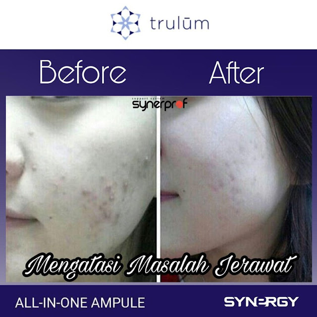 Jual Serum Penghilang Keriput Trulum Skincare Pancoran Mas