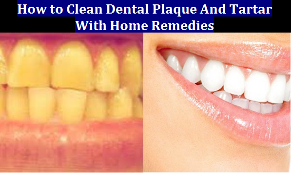 How to Clean Dental Plaque And Tartar With Home Remedies