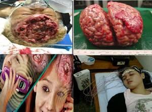 Obat Tumor Ganas Di Kepala