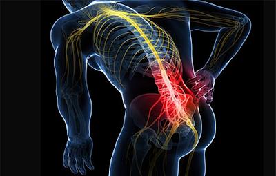 Apa Penyebab Sakit Tulang Pinggul Belakang