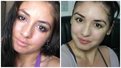 pele, tratamento de pele, manchas de pele, como tratar as manchas, como sair dos poros dilatados, pele lisa