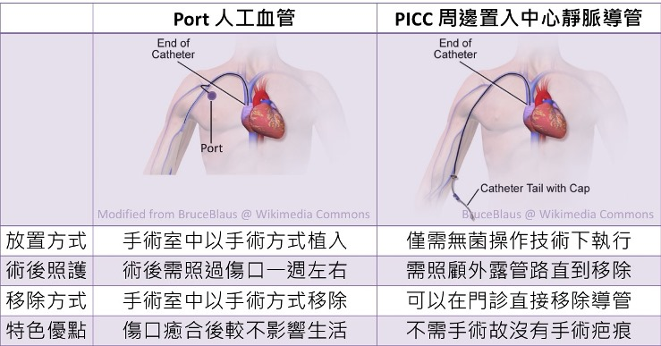 Port和PICC的比較
