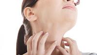 Obat Gatal gatal Alergi Bentol Kulit karena Dingin