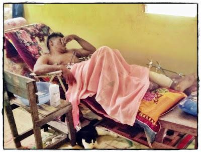 Gambar Pak Din terlantar akibat kecederaan kaki kerana letupan tong dram berisi kabaid.
