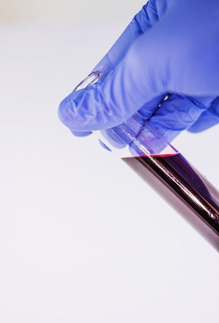 This new blood test that could replace PSA for prostate cancer could mean fewer biopsies