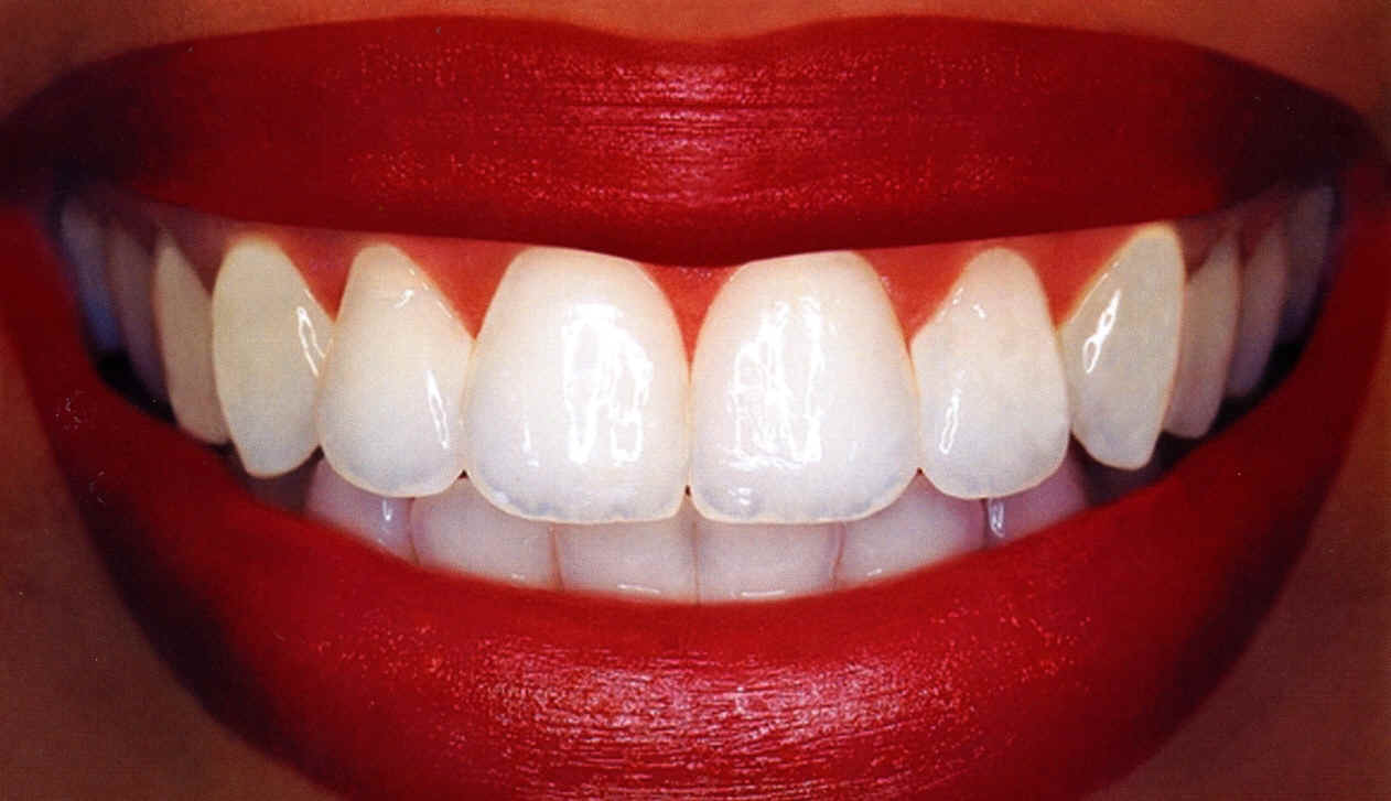 Stirway to heaven: 12 Natural Home-Remedies for Teeth ...