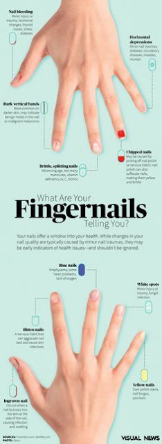Guide To Deciphering Your Fingernail Health & What To Do About It!