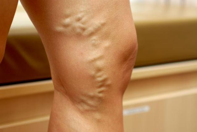 varicele pot fi ameliorate sau chiar vindecate fara bisturiu