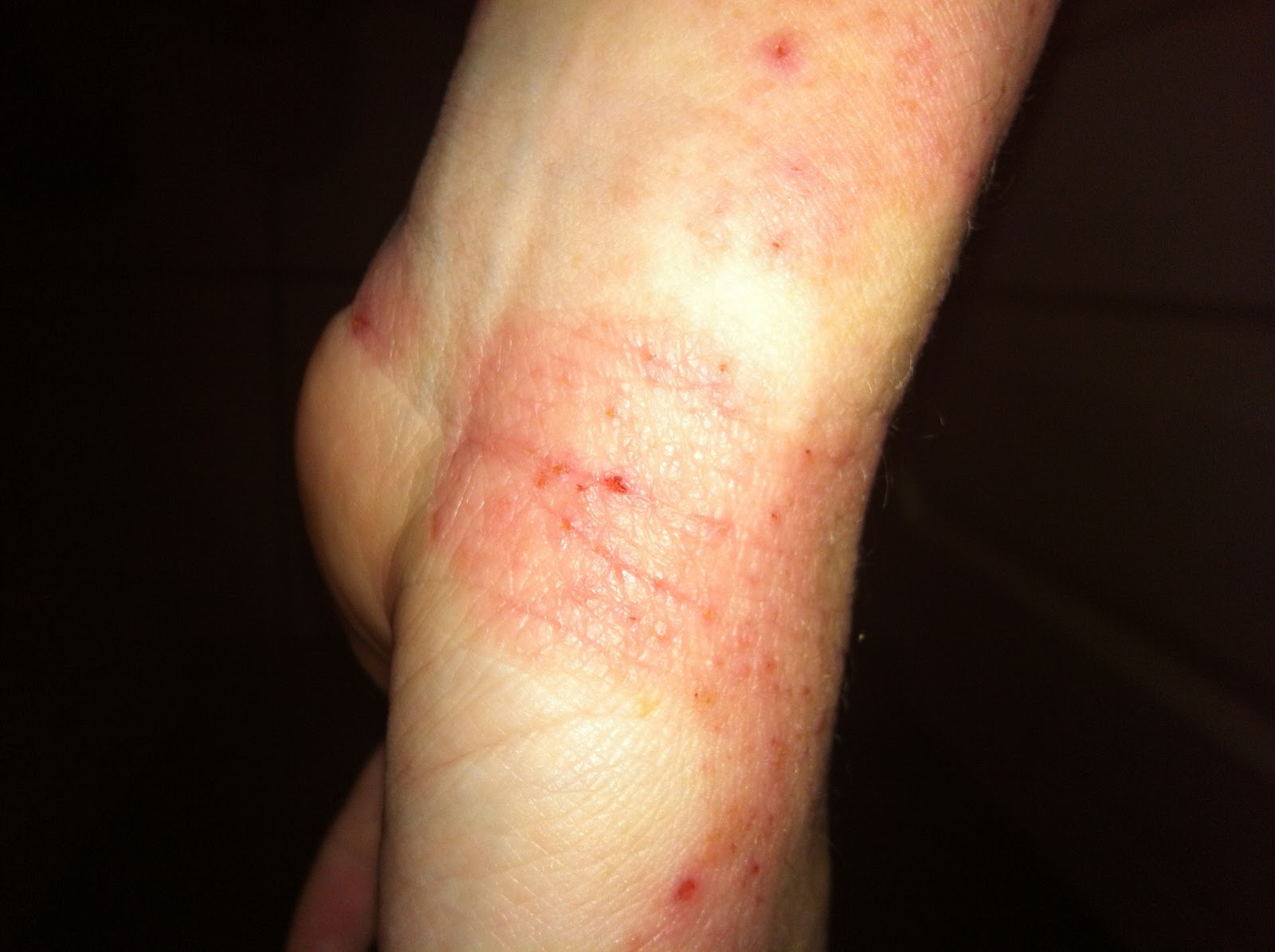 Astonishing Bad Cuts On Wrist More Information On Electro Team Hairstyles For Men Maxibearus