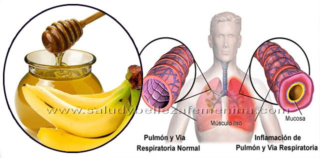 Eficaz tratamiento de plátano y miel para la tos y bronquitis, hoy te traemos una solución natural para curar la tos y la bronquitis que ha sido examinado y confirmado por tener resultados altamente eficaces contra estas condiciones