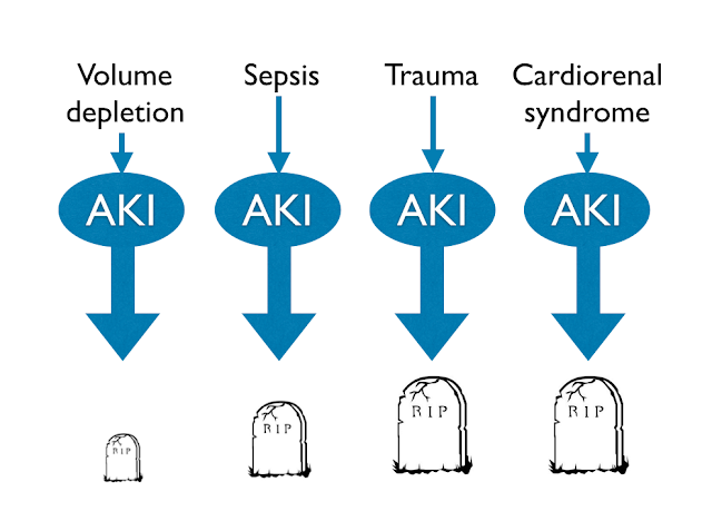 When a non-clinician tells you AKI is simple, prepare for disappointment.