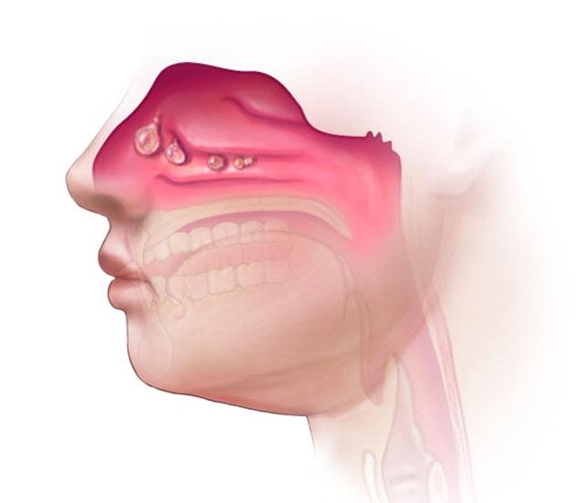 Ciri Ciri,Gejala,Penyebab Penyakit Polip Hidung & Obat Herbalnya