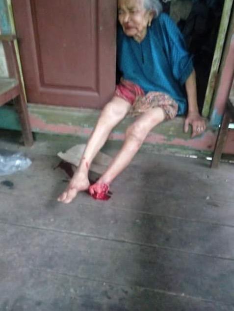 Kaki Nenek Dipotong Oleh Lelaki Melayu Disyaki Penagih Dadah