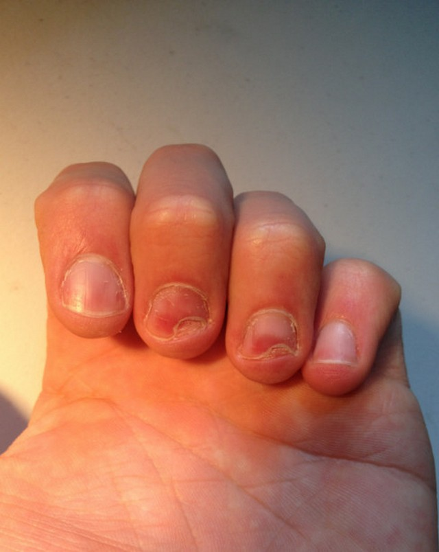 Damaged Nail Matrix - Nails Magazine