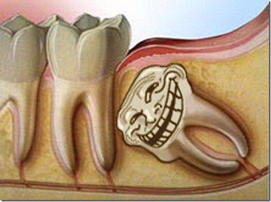 Dentes inclusos precisam de Cirurgia