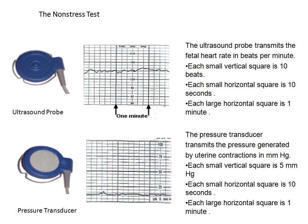 Fetal Monitoring Accelerations Electronic Fetal Heart