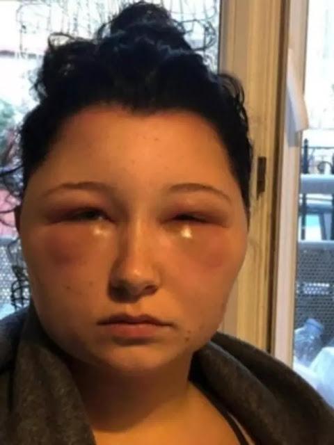 Alergi Pewarna Rambut, Wajah Wanita Ini Bengkak Bak Monster