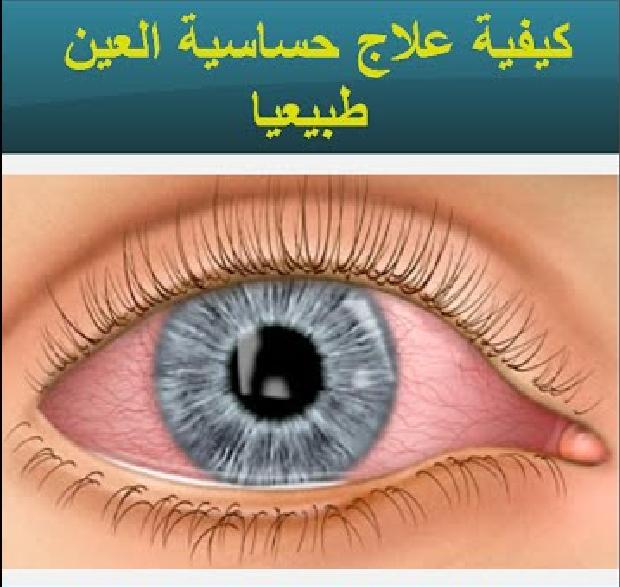 وصفات فعالة لعلاج حساسية العين طبيعيا