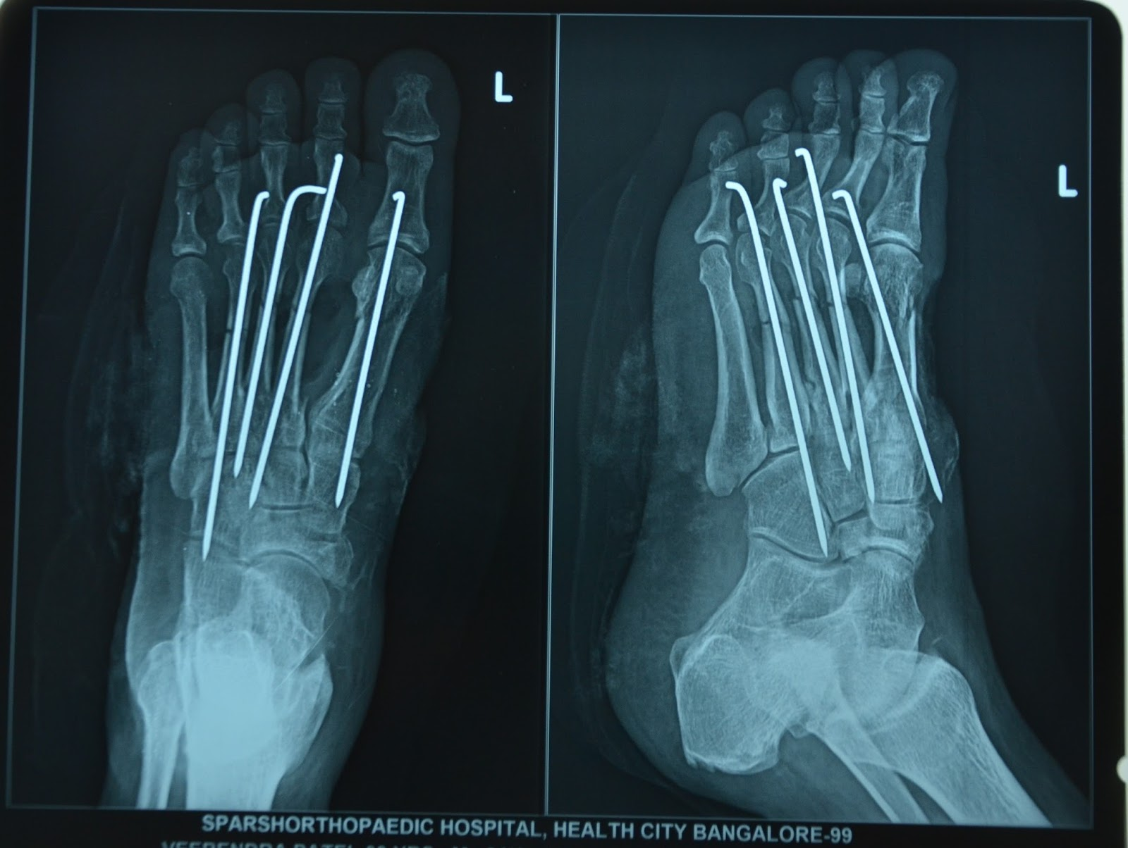 CRUSH INJURY FOOT - MULTIPLE METATARSAL FRACTURES - K-WIRE FIXATION ...