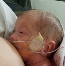 allaitement peau à peau prématuré bébé kangourou